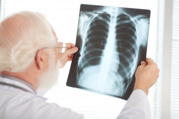 Može li se rak pluća izliječiti
