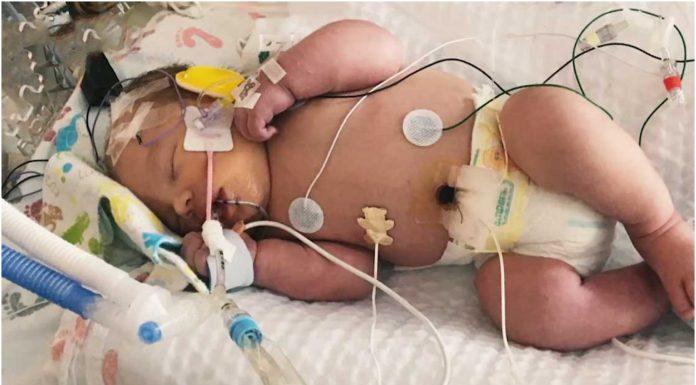 Beba koja je bila mrtva 20 minuta je čudesno oživjela