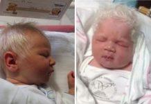 Beba iznenadila liječnike: Njezina fotografija s razlogom obilazi svijet