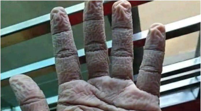 Fotografija smežurane ruke