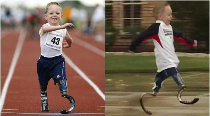 Dječak bez nogu