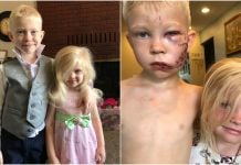 Dječak (6) spasio sestru od napada psa