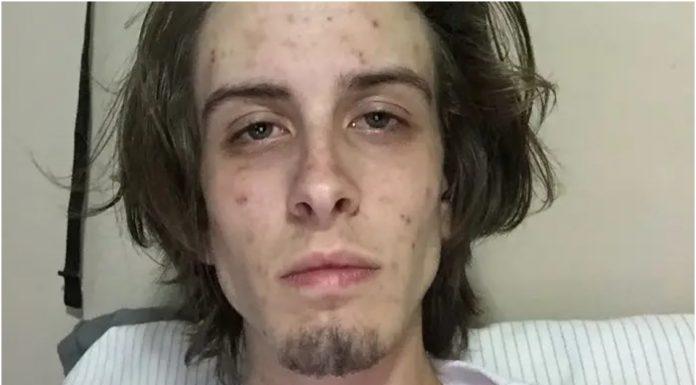 Mladić objavio fotografije prije i nakon odvikavanja od droge: