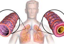 Astma je bolest koja nema lijeka: Kako je prepoznati i spriječiti?