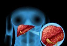 Namirnice zdravlje jetre