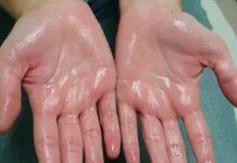 Znojni dlanovi: Kako se riješiti ovog problema?