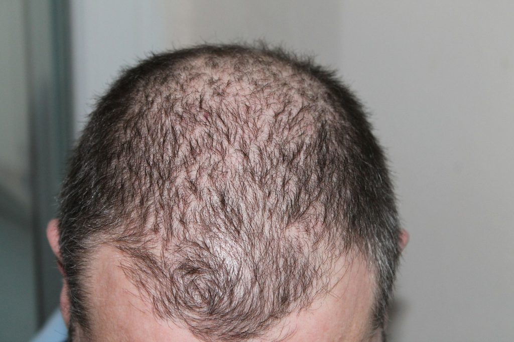 Što uzrokuje gubitak kose i dlake?