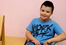 Što je Downov sindrom?