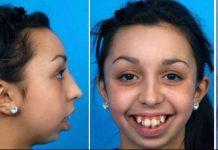 Ismijavali su je zbog izgleda zubi, no što će joj sada reći