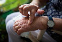 Reumatoidni artritis rani simptomi