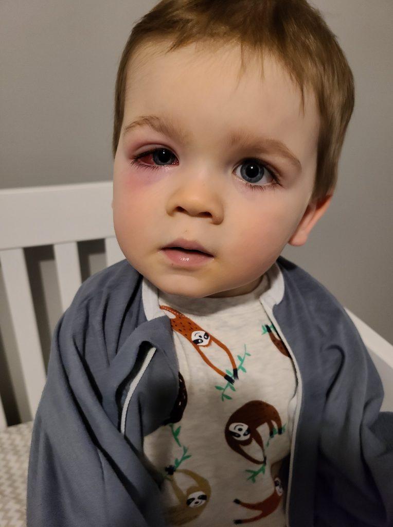 Dječak je imao teški celulitis