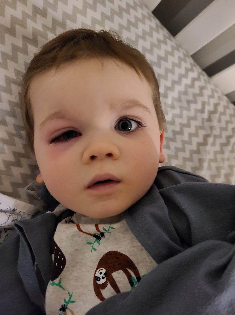 Oko mu je bilo otečeno, a crvenilo se širilo niz obraz