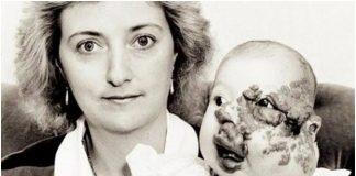 Djevojčica rođena s defomiranim licem