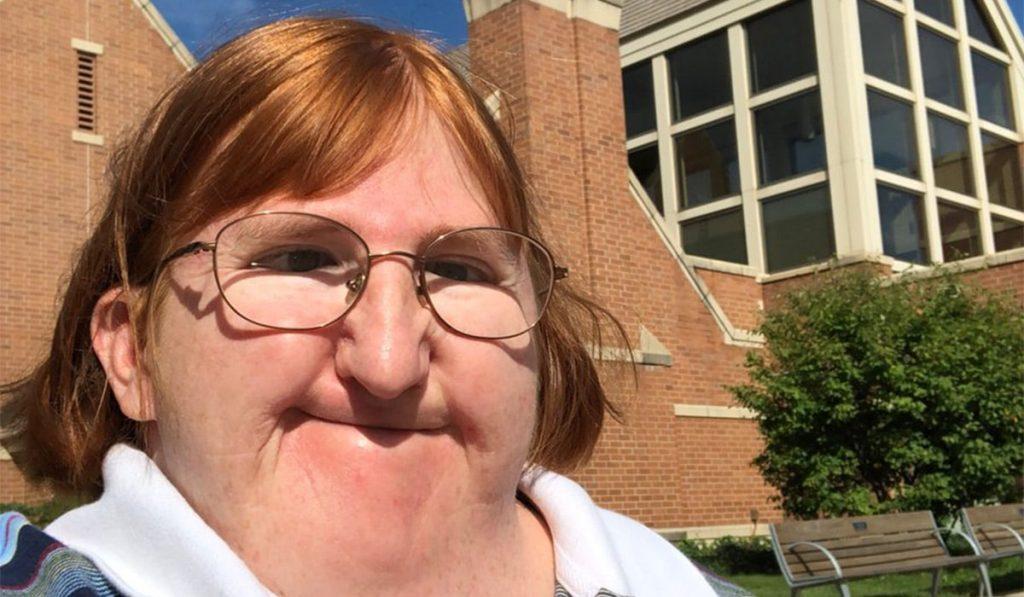 """Rekli su joj da je """"preružna"""" da objavljuje selfije"""