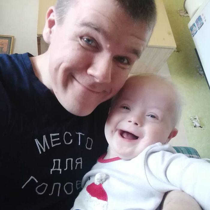 Otac i sin Downov sindrom