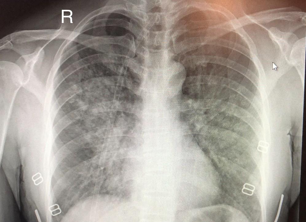 Plućni edem simptomi