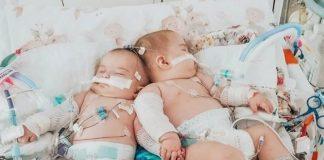 Roditelji su molili za sijamske blizanke