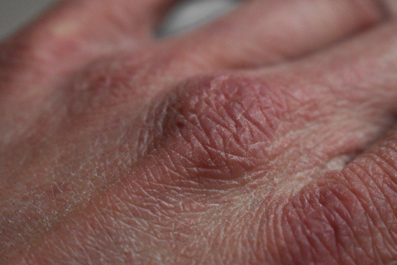 Suha koža tijekom zime