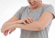 Prirodni lijekovi za liječenje ekcema
