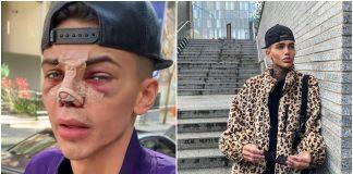 Potrošio je 35.000 eura da bi izgledao dobro na Instagramu