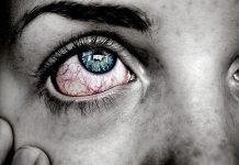 Visoki očni tlak