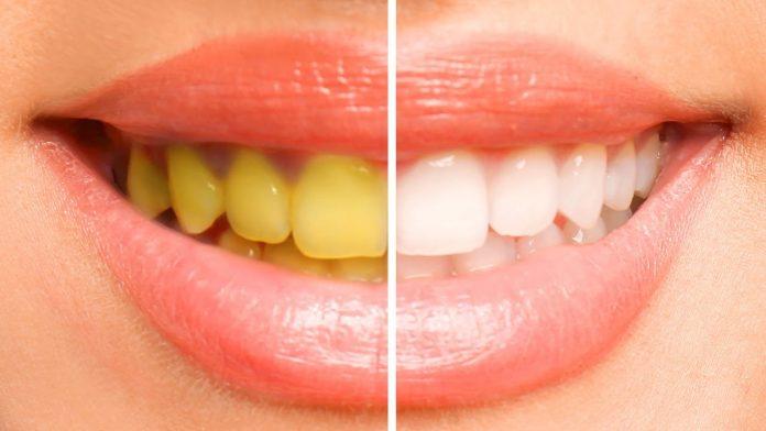 Navike koje štete zubima