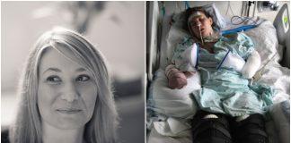 Majka je zbog infekcije izgubila noge i vid